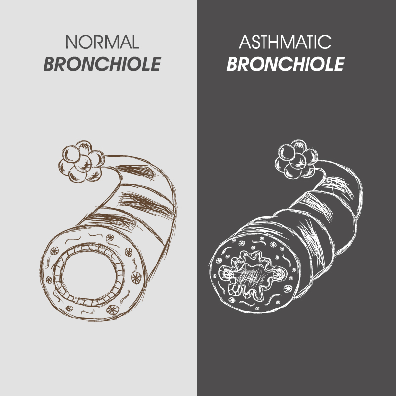 World Asthma Day Asthmatic Bronchiole Vector
